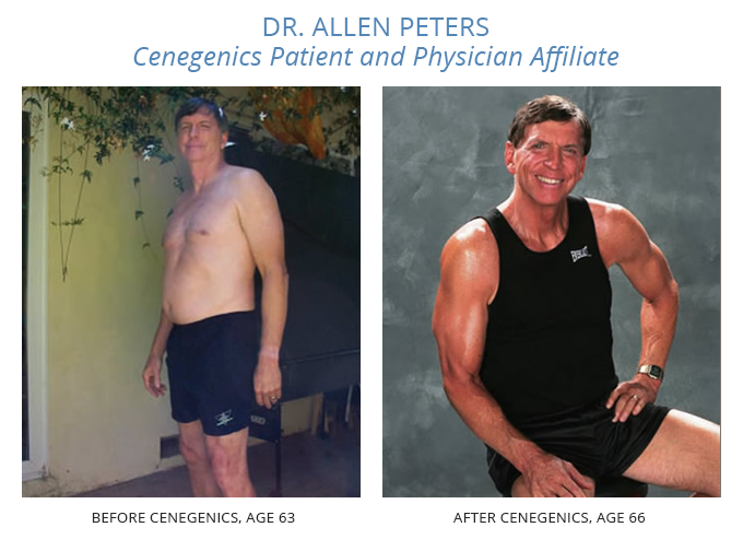 Dr. Allen Peters before and after going on the cenegenics program.