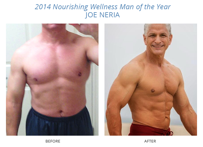 Joe Neria before and after Nourishing Wellness in Redondo Beach
